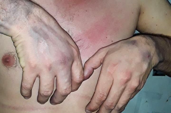 Prisionero político víctima de torturas en Cárcel La Picota