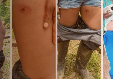 Dos mujeres indígenas fueron agredidas por la Policía en Putumayo